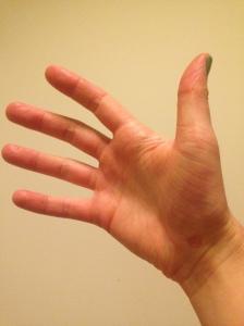 My battle wound! Bruised palm & wrist